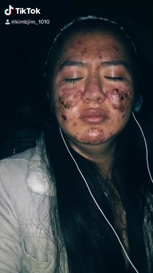 Volví a aferrarme a mi misma y todo va mejorar #acne #sueños#fyp#paratiiii#valorate#autocuidado# realidad of jeeto pakistan tiktok