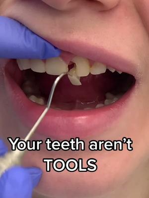 #tools #your #teeth #dont #never #tiktoker #tiktokers #toronto #viral #vlog #video #foryou #foryoupage tiktok