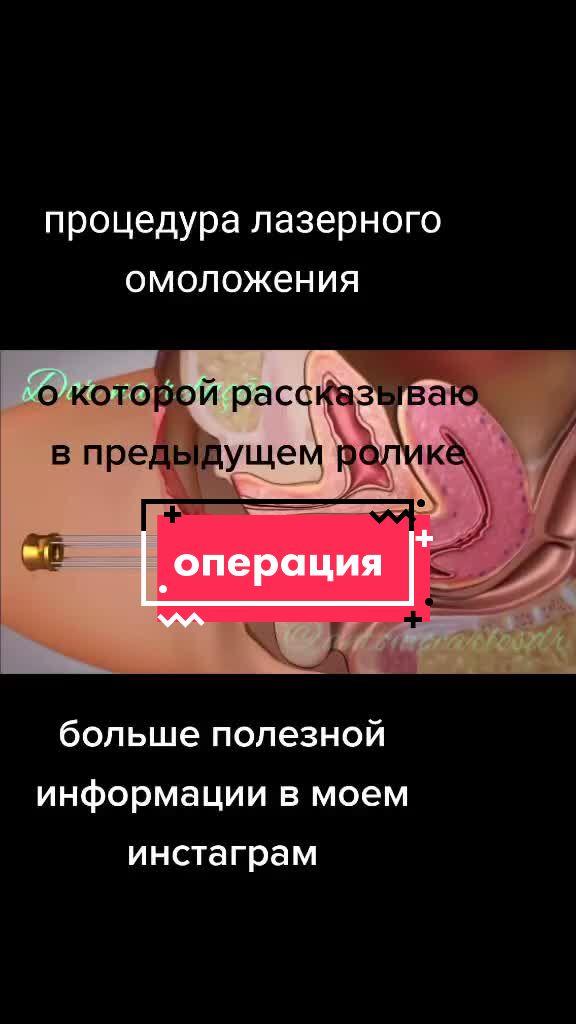 #лазерноеомоложение #эстетическаягинекология #восстановлениепослеродов #доктор #гинеколог tiktok